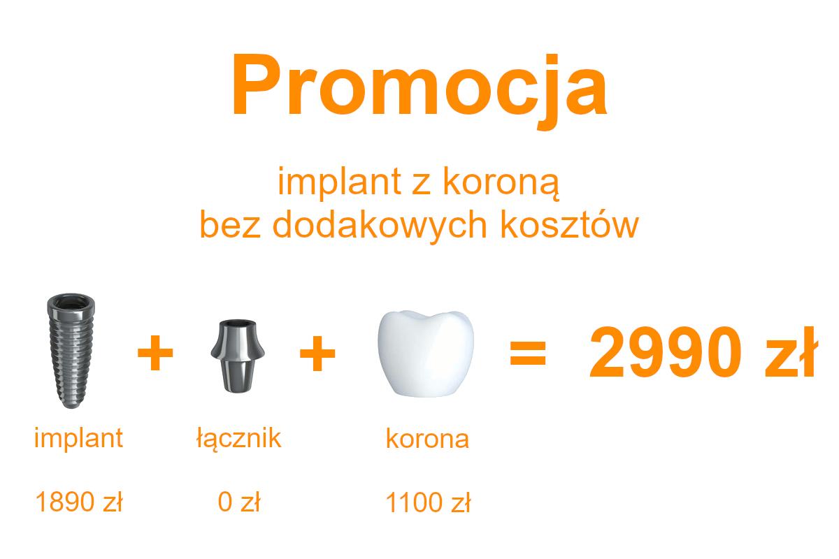 implant z koroną Płock 2990 promocja